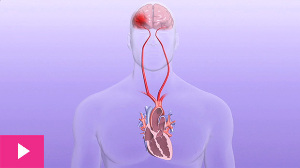 What Cardiac Ablation Does with AFib