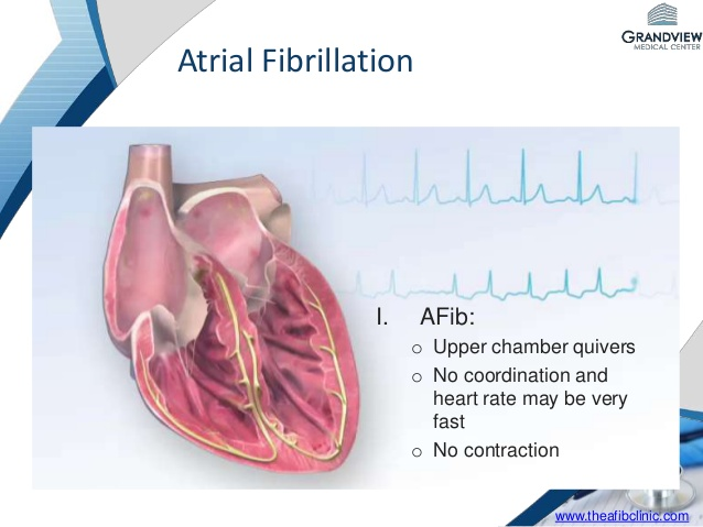 Afib and How It Affects Your Heart Rate